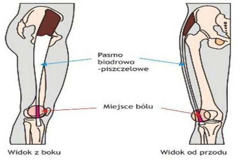 Syndrom pasma biodrowo piszczelowego(ITBS)
